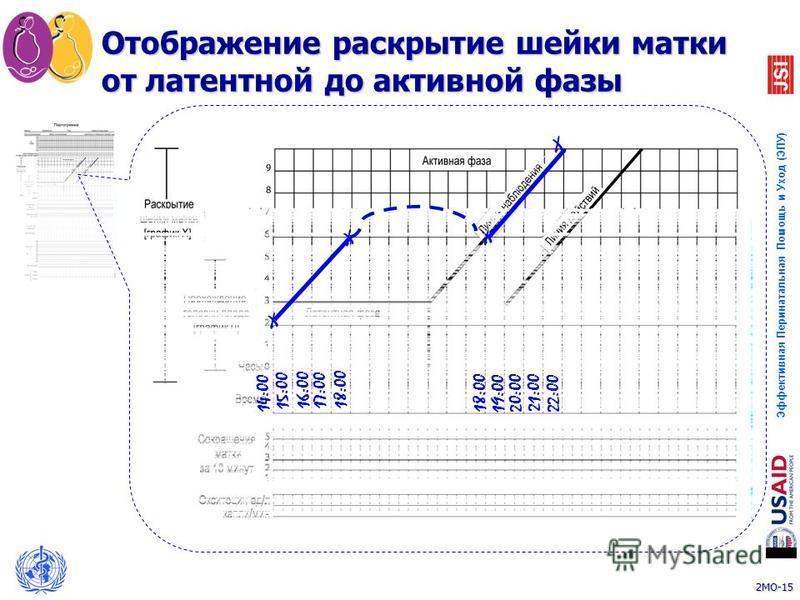 2MO-15 Эффективная Перинатальная Помощь и Уход (ЭПУ) 15 Отображение раскрытие шейки матки от латентной до активной фазы 14:00 15:00 16:00 17:00 18:00 X X X 21:00 20:00 18:00 19:00 22:00 X
