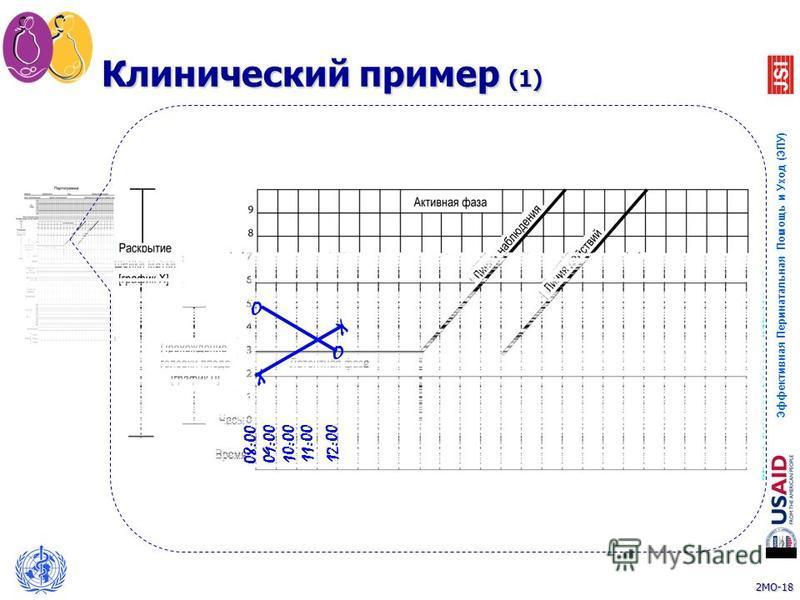 2MO-18 Эффективная Перинатальная Помощь и Уход (ЭПУ) 18 10:00 11:00 12:00 X X O Клинический пример (1) 09:00 08:00 O