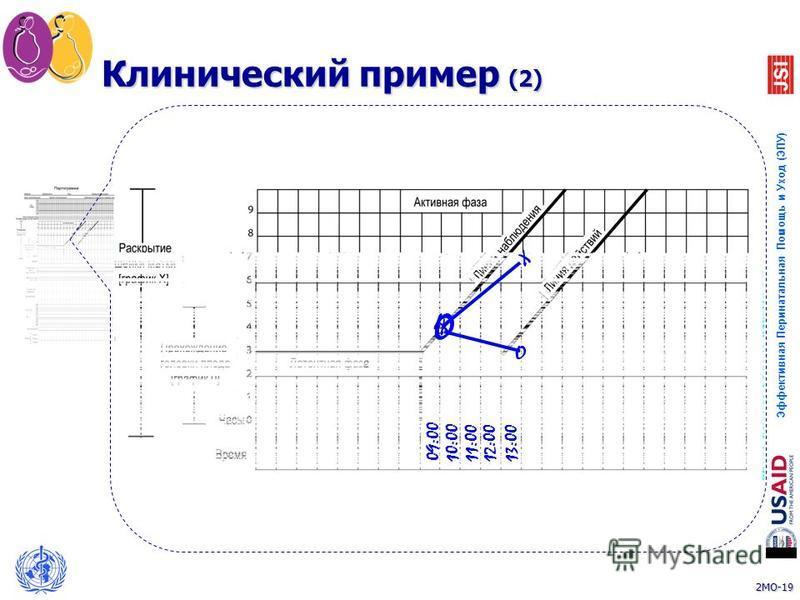 2MO-19 Эффективная Перинатальная Помощь и Уход (ЭПУ) 19 10:0011:0012:0013:00 O X X O Клинический пример (2) 09:00