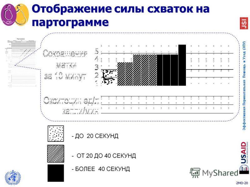 2MO-20 Эффективная Перинатальная Помощь и Уход (ЭПУ) 20 Отображение силы схваток на партограмме