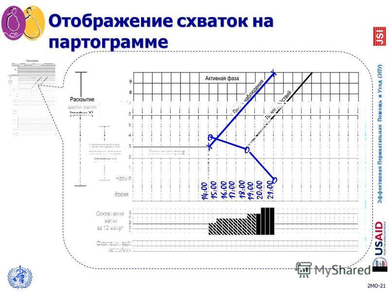 2MO-21 Эффективная Перинатальная Помощь и Уход (ЭПУ) 21 Отображение схваток на партограмме 14:00 15:00 16:00 17:00 18:00 19:00 20:00 21:00 O O O X X