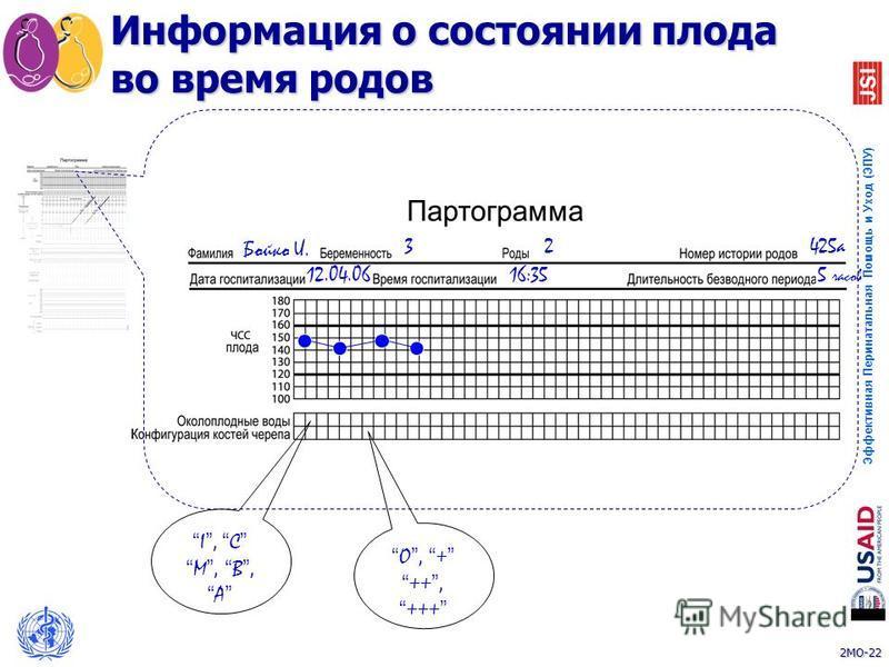 2MO-22 Эффективная Перинатальная Помощь и Уход (ЭПУ) 22 Бойко И. 32425 а 12.04.0616:35 I, C M, B, A O, + ++, +++ Информация о состоянии плода во время родов 5 часов