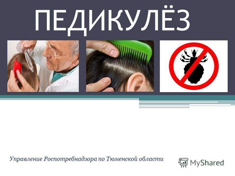 ПЕДИКУЛЁЗ Управление Роспотребнадзора по Тюменской области