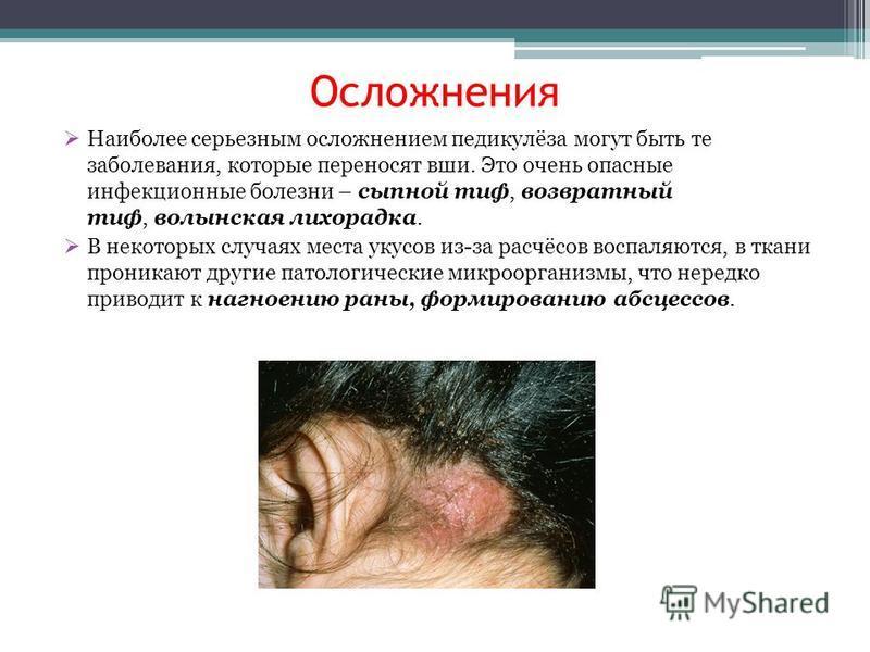 Осложнения Наиболее серьезным осложнением педикулёза могут быть те заболевания, которые переносят вши. Это очень опасные инфекционные болезни – сыпной тиф, возвратный тиф, волынская лихорадка. В некоторых случаях места укусов из-за расчёсов воспаляют