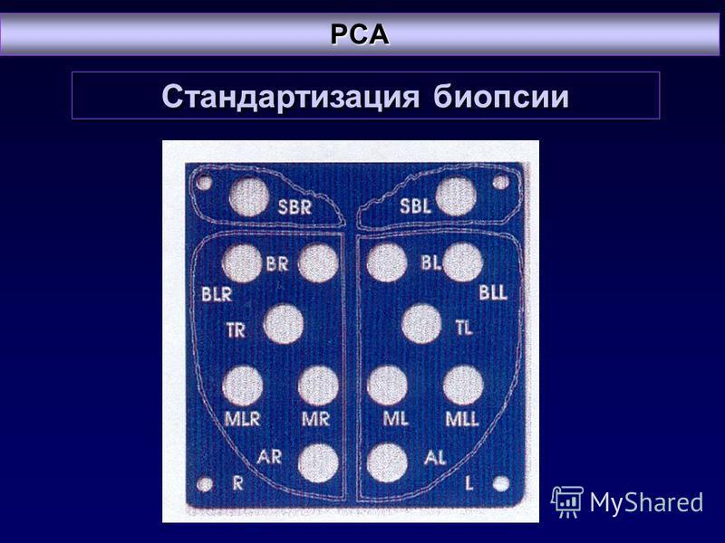 Стандартизация биопсии PCA