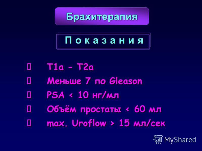 T1a - T2a Меньше 7 по Gleason PSA < 10 нг/мл Объём простаты < 60 мл max. Uroflow > 15 мл/сек T1a - T2a Меньше 7 по Gleason PSA < 10 нг/мл Объём простаты < 60 мл max. Uroflow > 15 мл/сек Брахитерапия П о к а з а н и яП о к а з а н и я П о к а з а н и