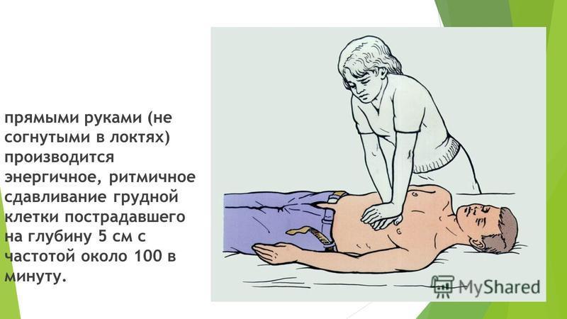 прямыми руками (не согнутыми в локтях) производится энергичное, ритмичное сдавливание грудной клетки пострадавшего на глубину 5 см с частотой около 100 в минуту.