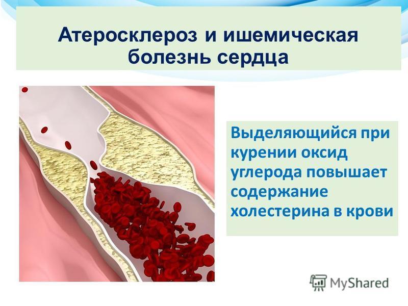 Атеросклероз и ишемическая болезнь сердца Выделяющийся при курении оксид углерода повышает содержание холестерина в крови