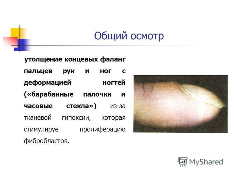 Общий осмотр утолщение концевых фаланг пальцев рук и ног с деформацией ногтей («барабанные палочки и часовые стекла») из-за тканевой гипоксии, которая стимулирует пролиферацию фибробластов.