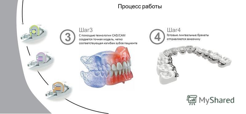 Процесс работы Шаг 3 С помощью технологии CAD/CAM создается точная модель, четко соответствующая изгибам зубов пациента Шаг 4 Готовые лингвальные брекеты отправляются заказчику 3 4