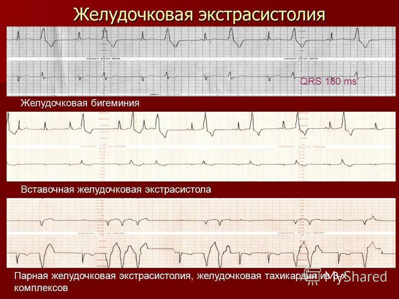 Желудочковая экстрасистолия QRS 180 ms Желудочковая бигеминия Вставочная желудочковая экстрасистола Парная желудочковая экстрасистолия, желудочковая тахикардия из 3-х комплексов