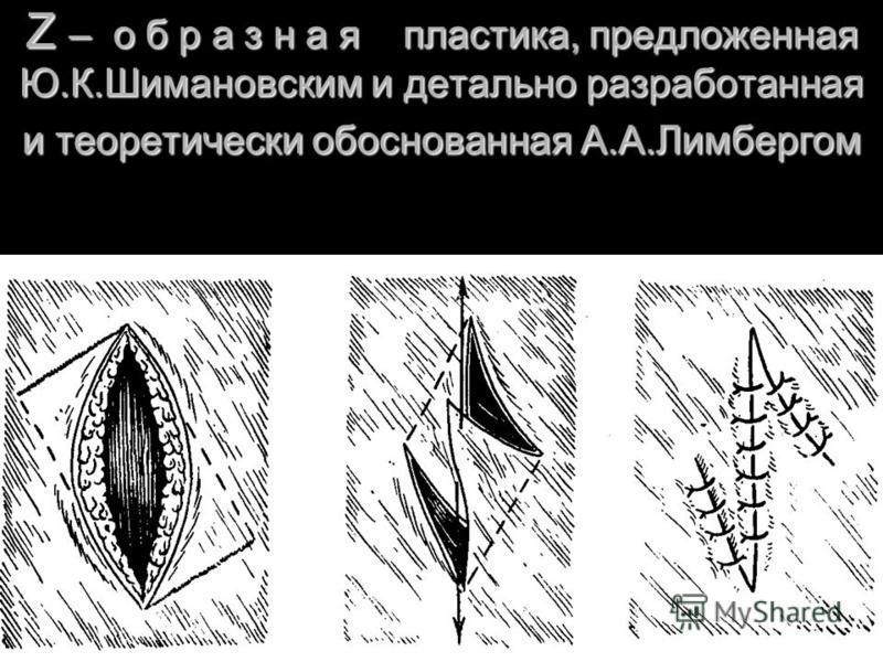 Z – о б р а з н а я пластика, предложенная Ю.К.Шимановским и детально разработанная и теоретически обоснованная А.А.Лимбергом