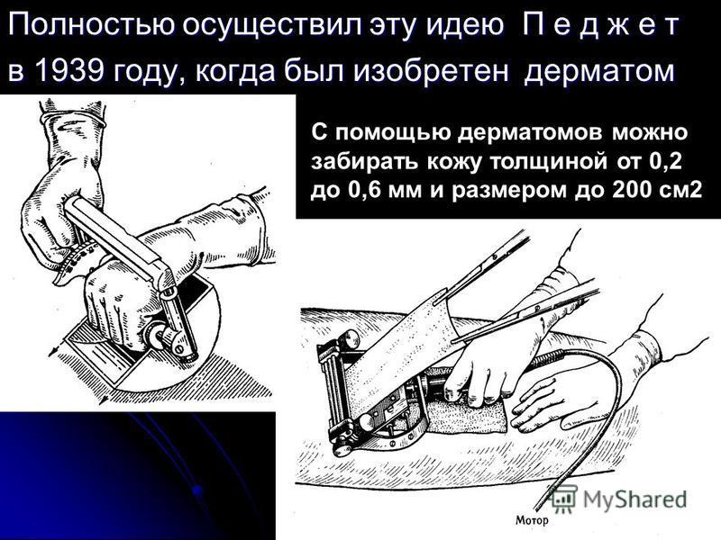 Полностью осуществил эту идею П е д ж е т в 1939 году, когда был изобретен дерматом С помощью дерматомов можно забирать кожу толщиной от 0,2 до 0,6 мм и размером до 200 см 2