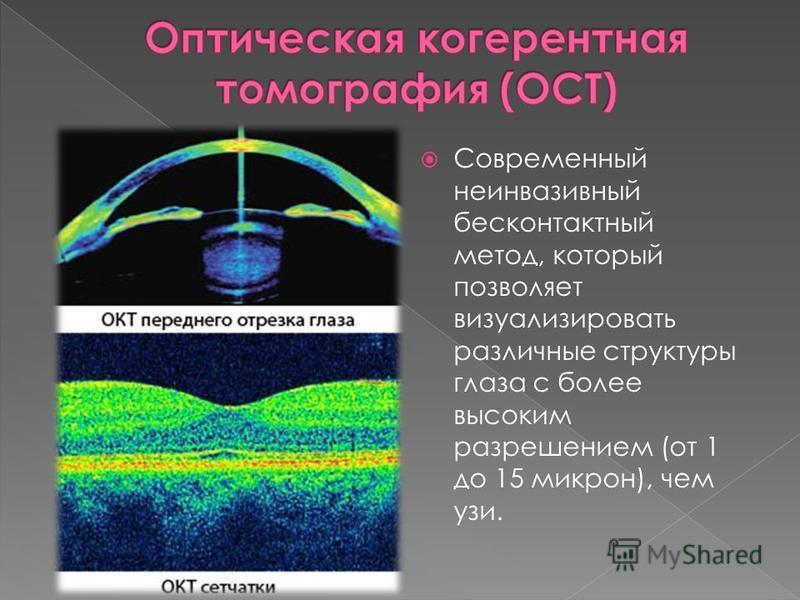 Современный неинвазивный бесконтактный метод, который позволяет визуализировать различные структуры глаза с более высоким разрешением (от 1 до 15 микрон), чем узи.