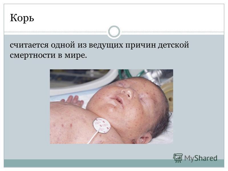 Корь считается одной из ведущих причин детской смертности в мире.