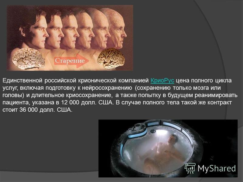 Единственной российской хронической компанией Крио Рус цена полного цикла Крио Рус услуг, включая подготовку к нейросохранению (сохранению только мозга или головы) и длительное криосохранение, а также попытку в будущем реанимировать пациента, указана