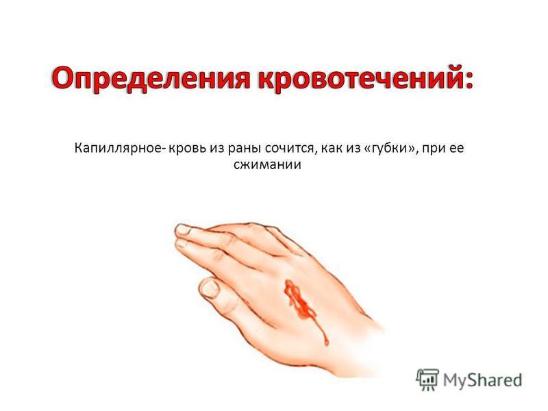 Капиллярное - кровь из раны сочится, как из « губки », при ее сжимании