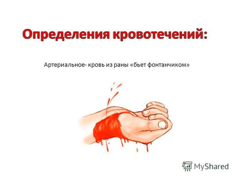 Артериальное - кровь из раны « бьет фонтанчиком »