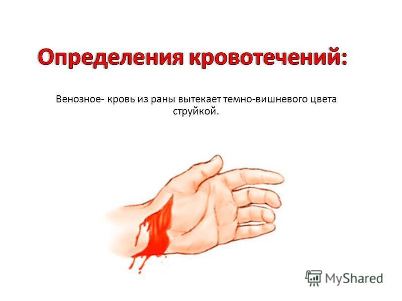 Венозное - кровь из раны вытекает темно - вишневого цвета струйкой.