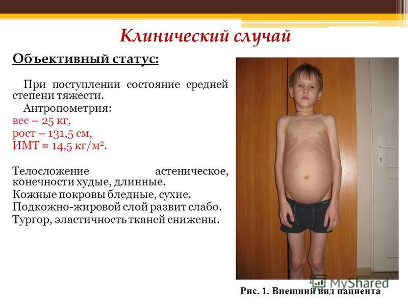 Объективный статус: При поступлении состояние средней степени тяжести. Антропометрия: вес – 25 кг, рост – 131,5 см, ИМТ = 14,5 кг/м 2. Телосложение астеническое, конечности худые, длинные. Кожные покровы бледные, сухие. Подкожно-жировой слой развит с