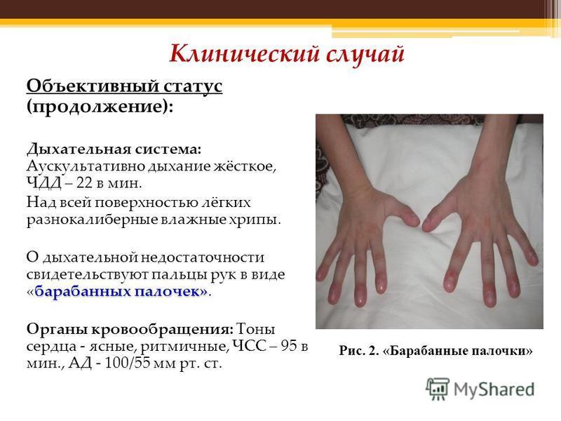 Объективный статус (продолжение): Дыхательная система: Аускультативно дыхание жёсткое, ЧДД – 22 в мин. Над всей поверхностью лёгких разнокалиберные влажные хрипы. барабанных палочек» О дыхательной недостаточности свидетельствуют пальцы рук в виде «ба