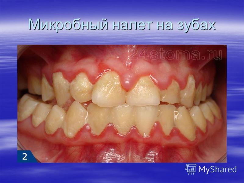 Микробный налет на зубах
