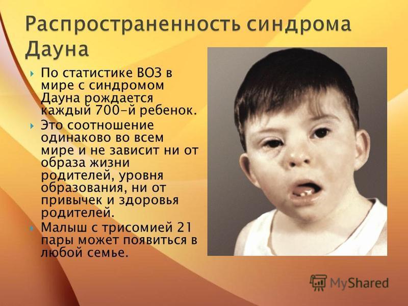 По статистике ВОЗ в мире с синдромом Дауна рождается каждый 700-й ребенок. Это соотношение одинаково во всем мире и не зависит ни от образа жизни родителей, уровня образования, ни от привычек и здоровья родителей. Малыш с трисомией 21 пары может появ