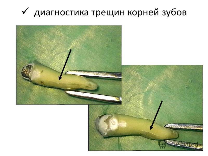 диагностика трещин корней зубов