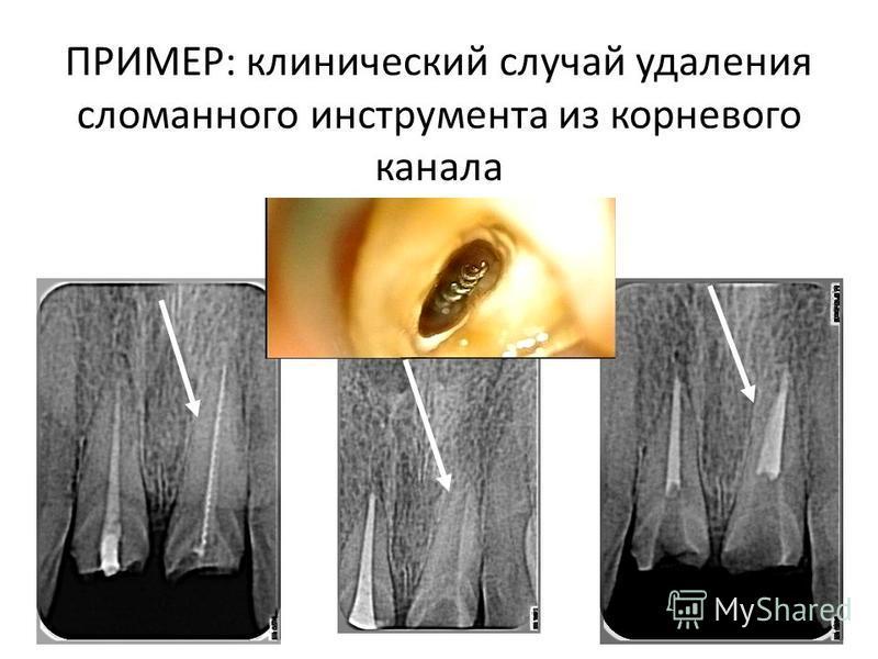 ПРИМЕР: клинический случай удаления сломанного инструмента из корневого канала