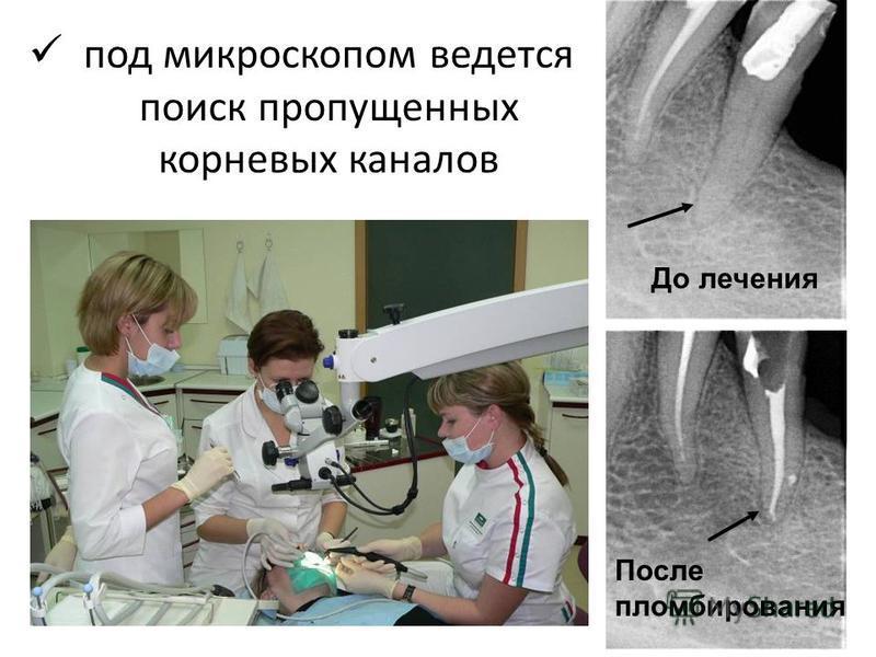 под микроскопом ведется поиск пропущенных корневых каналов До лечения После пломбирования
