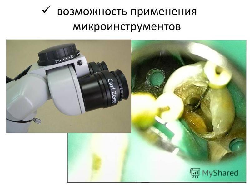 возможность применения микроинструментов