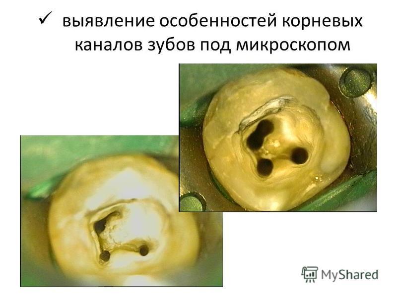 выявление особенностей корневых каналов зубов под микроскопом