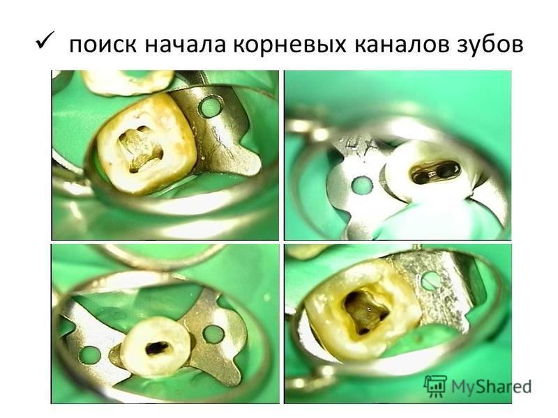 поиск начала корневых каналов зубов