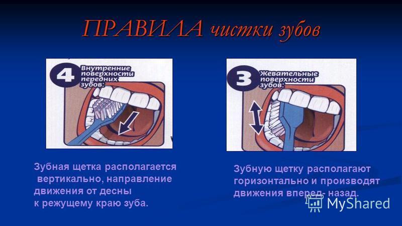 Зубная щетка располагается вертикально, направление движения от десны к режущему краю зуба. ПРАВИЛА чистки зубов Зубную щетку располагают горизонтально и производят движения вперед- назад.