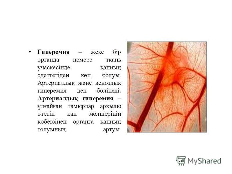 Гиперемия – жеке бір органда немесе ткань учаскесінде қанның әдеттегіден көп болуы. Артериалдық және веноздық гиперемия деп бөлінеді. Артериалдық гиперемия – ұлғайған тамырлар арқылы өтетін қан мөлшерінің көбеюінен органға қанның толуының артуы.