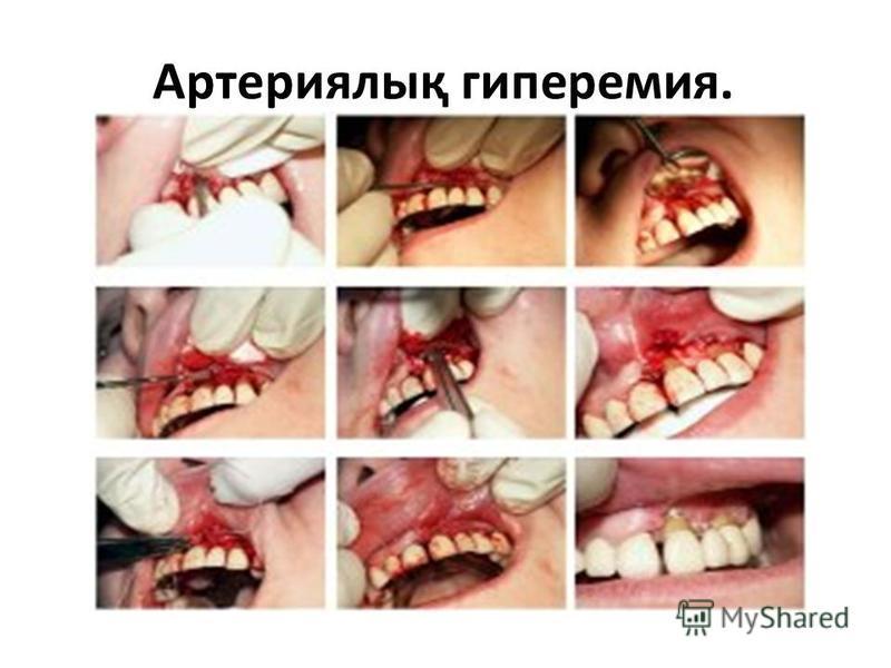 Артериялық гиперемия.