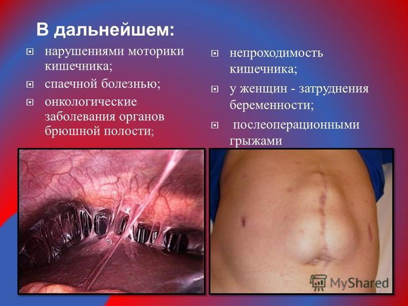 нарушениями моторики кишечника ; спаечной болезнью ; онкологические заболевания органов брюшной полости ; В дальнейшем : непроходимость кишечника ; у женщин - затруднения беременности ; послеоперационными грыжами