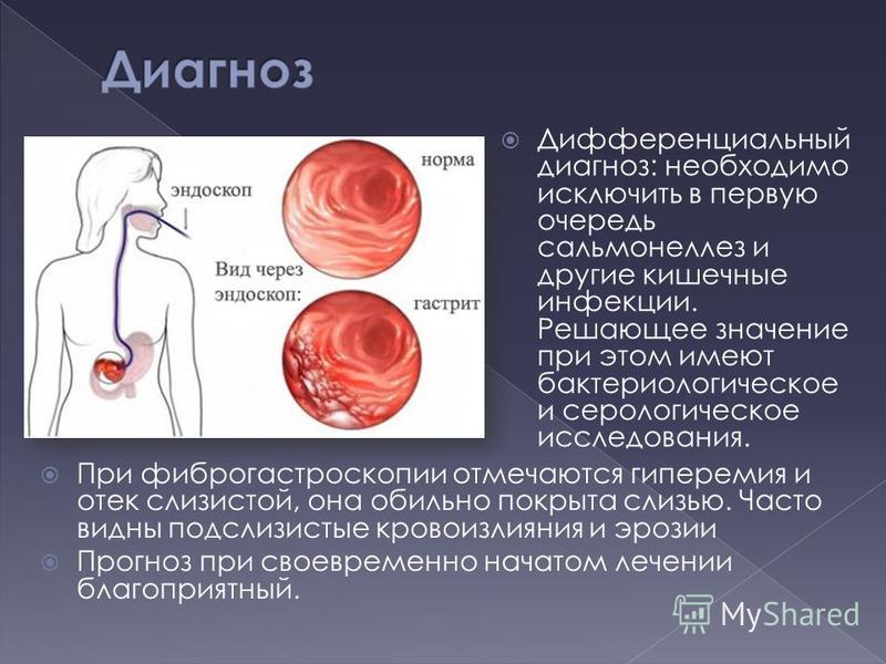 Дифференциальный диагноз: необходимо исключить в первую очередь сальмонеллез и другие кишечные инфекции. Решающее значение при этом имеют бактериологическое и серологическое исследования. При фиброгастроскопии отмечаются гиперемия и отек слизистой, о