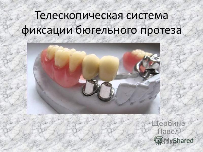 Телескопическая система фиксации бюгельного протеза Щербина Павел 381 гр.