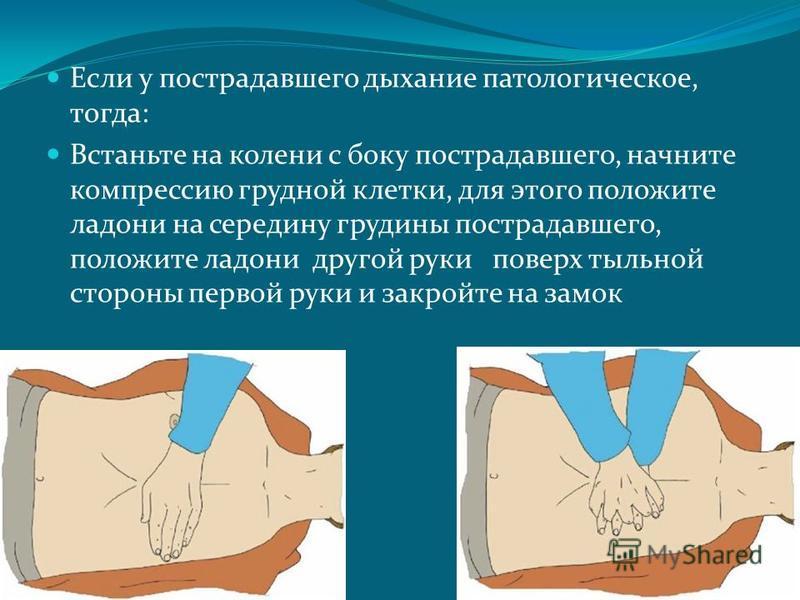 Если у пострадавшего дыхание патологическое, тогда: Встаньте на колени с боку пострадавшего, начните компрессию грудной клетки, для этого положите ладони на середину грудины пострадавшего, положите ладони другой руки поверх тыльной стороны первой рук
