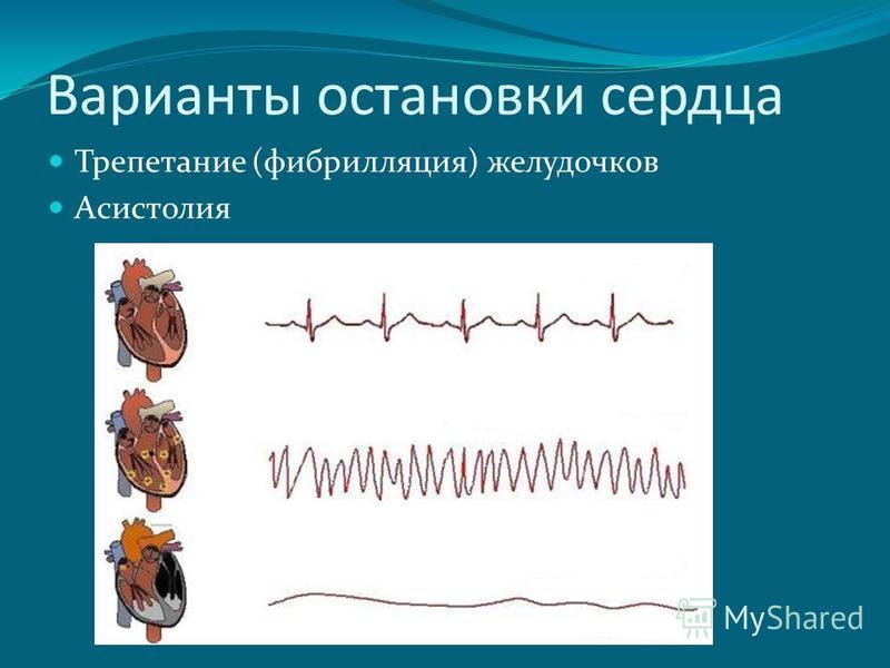 Варианты остановки сердца Трепетание (фибрилляция) желудочков Асистолия