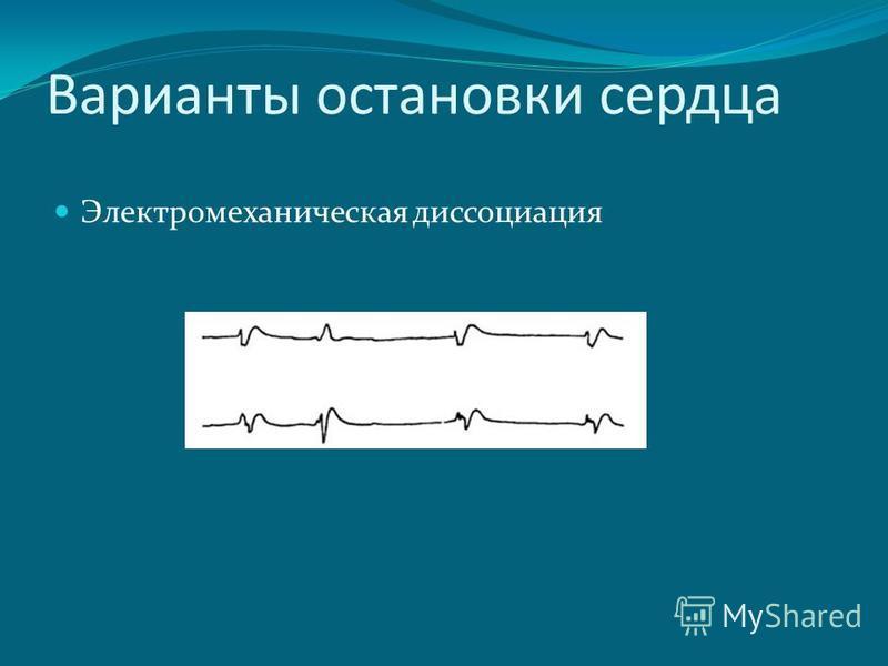 Электромеханическая диссоциация Варианты остановки сердца