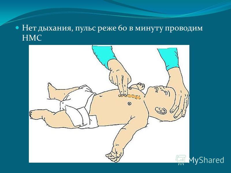 Нет дыхания, пульс реже 60 в минуту проводим НМС