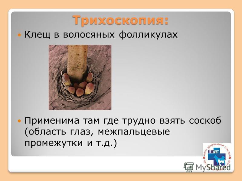 Трихоскопия: Клещ в волосяных фолликулах Применима там где трудно взять соскоб (область глаз, межпальцевые промежутки и т.д.)
