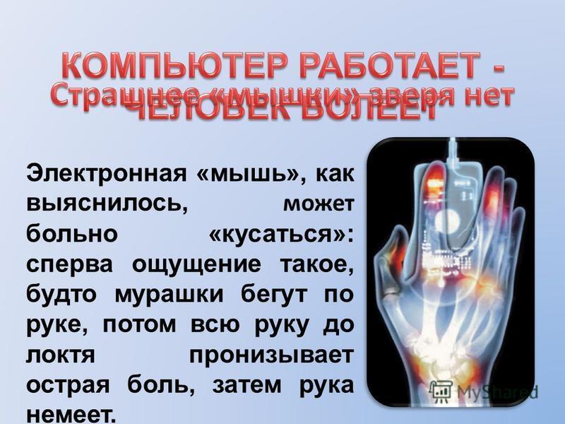 Электронная «мышь», как выяснилось, может больно «кусаться»: сперва ощущение такое, будто мурашки бегут по руке, потом всю руку до локтя пронизывает острая боль, затем рука немеет.