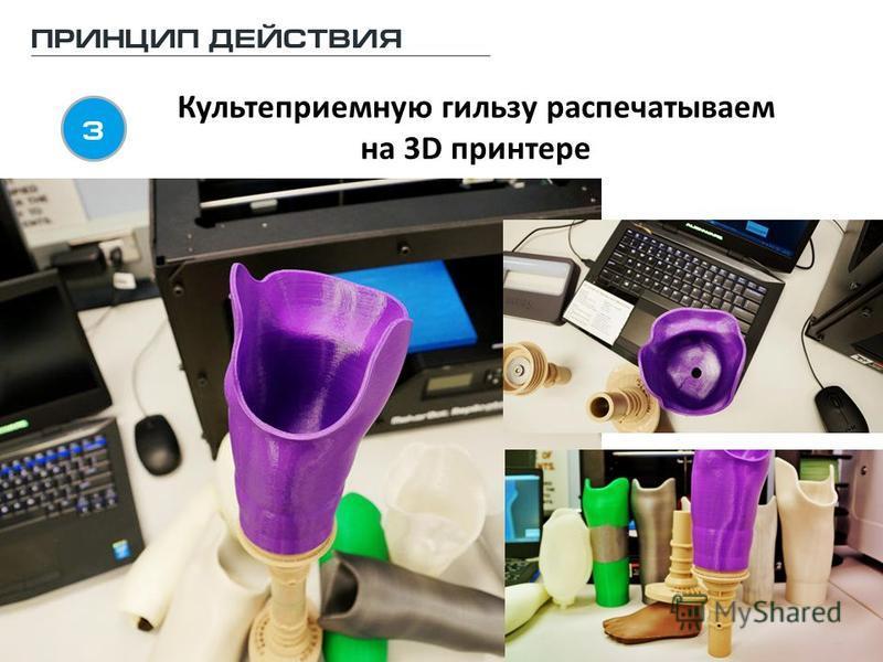 Культеприемную гильзу распечатываем на 3D принтере