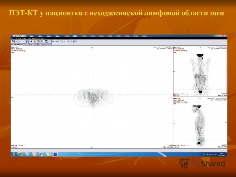 ПЭТ-КТ у пациентки с неходжкинской лимфомой области шеи