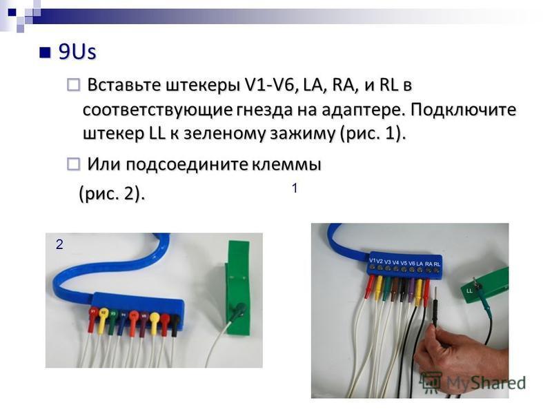 9Us 9Us Вставьте штекеры V1-V6, LA, RA, и RL в соответствующие гнезда на адаптере. Подключите штекер LL к зеленому зажиму (рис. 1). Вставьте штекеры V1-V6, LA, RA, и RL в соответствующие гнезда на адаптере. Подключите штекер LL к зеленому зажиму (рис
