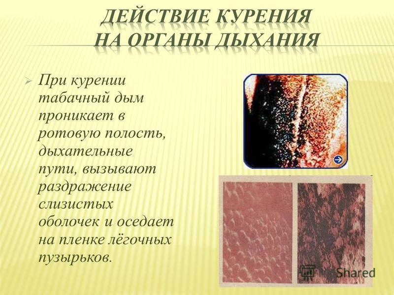 При курении табачный дым проникает в ротовую полость, дыхательные пути, вызывают раздражение слизистых оболочек и оседает на пленке лёгочных пузырьков.