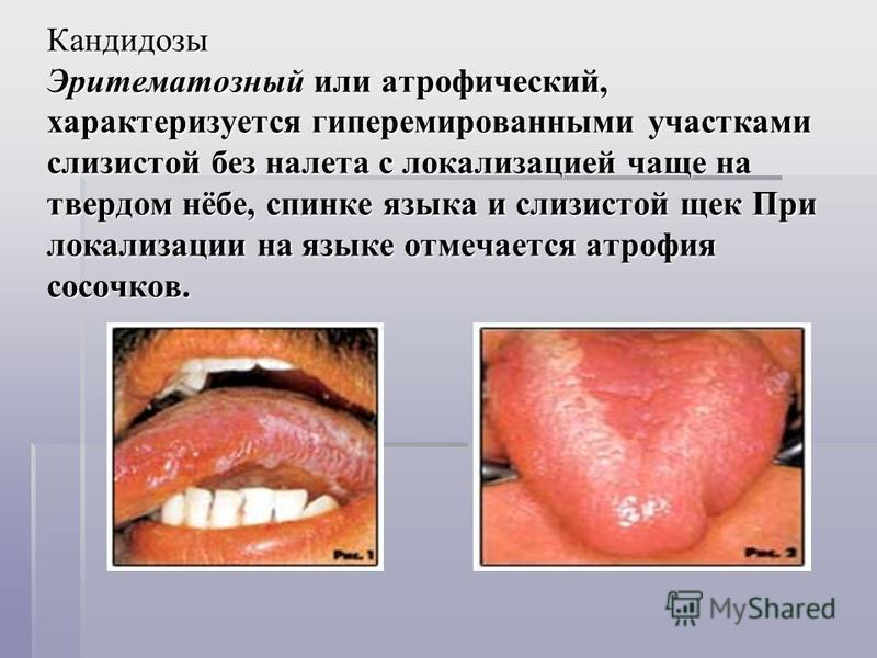 Кандидозы Эритематозный или атрофический, характеризуется гиперемированными участками слизистой без налета с локализацией чаще на твердом нёбе, спинке языка и слизистой щек При локализации на языке отмечается атрофия сосочков. Кандидозы Эритематозный